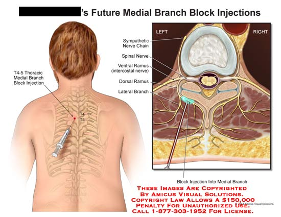 amicus,injection,future,medial,branch,block,T4-5,sympathetic,nerve,chain,spinal,nerve,ventral,ramus,intercoastal,nerve,dorsal,ramus,lateral,needle