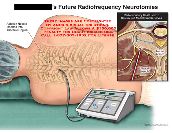 amicus,injection,future,radiofrequency,neurotomies,ablation,needle,inserted,thoracic,region,medial,branch