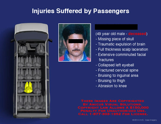 amicus,interactive,injury,suffered,passengers,deceased,missing,skull,traumatic,expulsion,brain,full,thickness,scalf,laceration,extensive,comminuted,facial,fractures,collapsed,left,eyeball,fractured,cervical,spine,bruising,inguinal,area,thigh,abrasion,knee