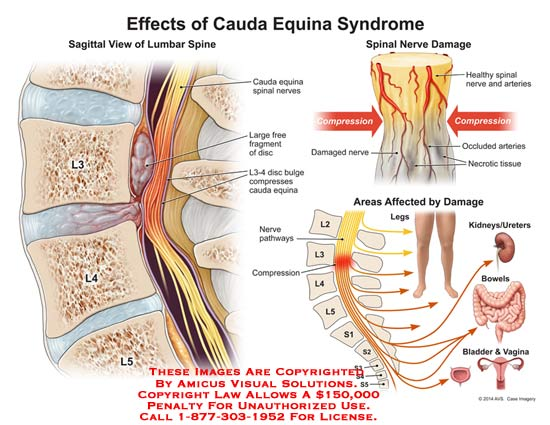 effect of cauda equina syndrome, Human Body