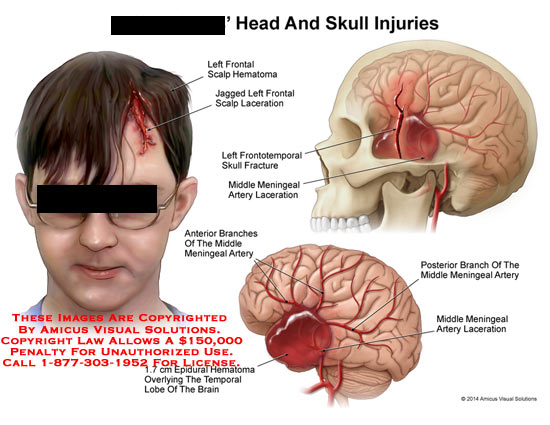 amicus,injury,head,skull,left,frontal,scalp,hematoma,jagged,left,frontal,scalp,laceration,frontotemporal,fracture,meningeal,artery,branches,middle,hematoma,temporal,lobe,posterior