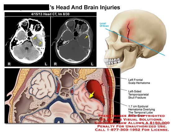 amicus,injury,head,brain,CT,frontal,scalp,hematoma,temporoparietal,skull,fracture,epidural,temporal,lobe