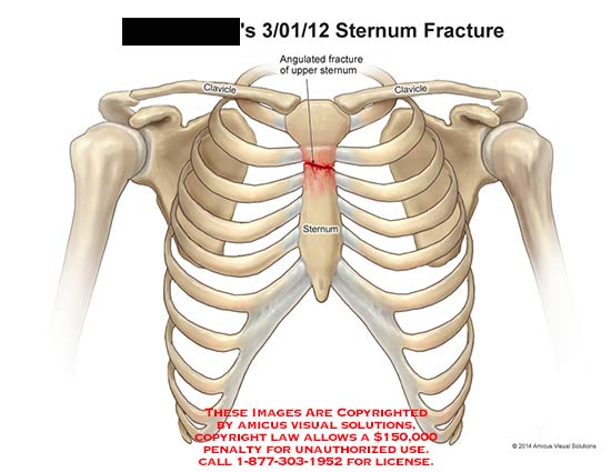 Abscessation Osteomyelitis And Fracture Of The Sternum In: Sternum Fracture