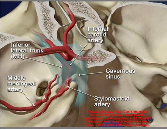 CAROTID CAVERNOUS SINUS FISTULA EBOOK DOWNLOAD