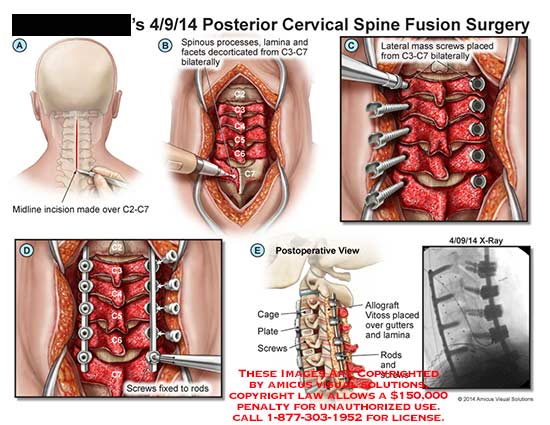 amicus,surgery,cervical,spine,fusion,incision,lamina,facet,screw,x-ray,cage,plate,allograft,vitoss,gutter