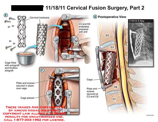 amicus,surgery,cervical,fusion,hardware,cage,autograft,grafton,allograft,plate,screw,cage,endplate,drill,x-ray,spine