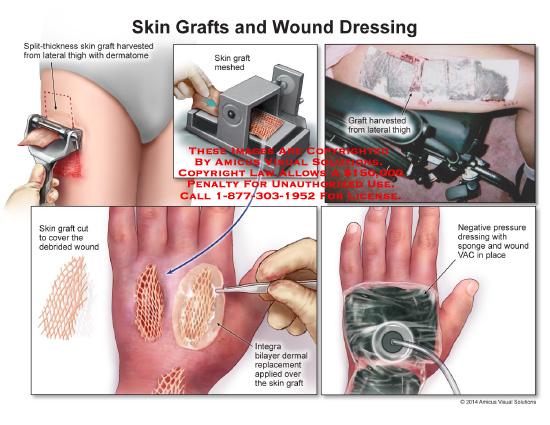 amicus,injury,skin,graft,wound,dressing,lateral,thigh,dermatome,spone,VAC