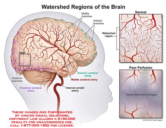 amicus,anatomy,brain,watershed,region,branch,poor,perfusion,tissue,oxygen,artery,carotid,cerebral