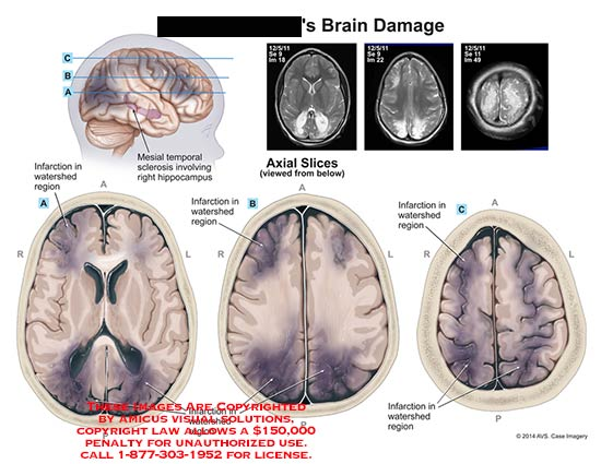 amicus,injury,brain,damage,watershed,region,infarction,mesial,temporal,sclerosis,hippocampus