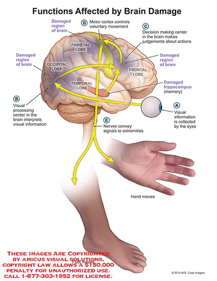 amicus,surgery,functions,affected,brain,damage,motor,cortex,hippocampus,lobe,nerve,signal,extremity,hand,foot,eye