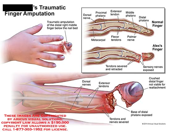 amicus illustration of amicus surgery traumatic finger. Black Bedroom Furniture Sets. Home Design Ideas