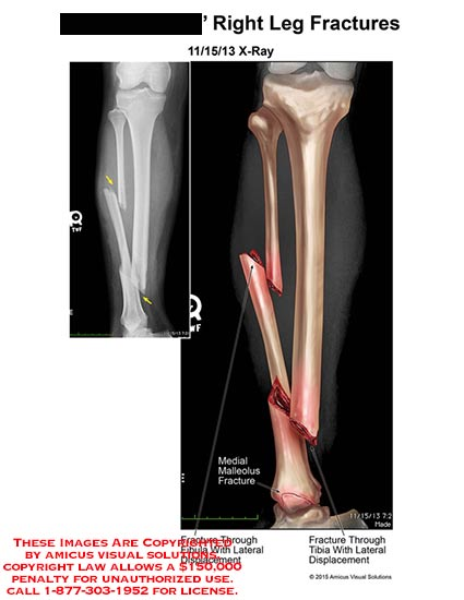 amicus,radiology,right,leg,fracture,x-ray,fibula,lateral,displacement,tibia,medial,malleolus