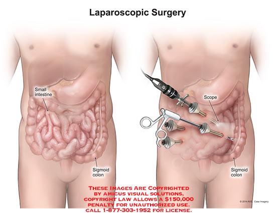 amicus,surgery,laparoscopic,small,intestine,sigmoid,colon,scope