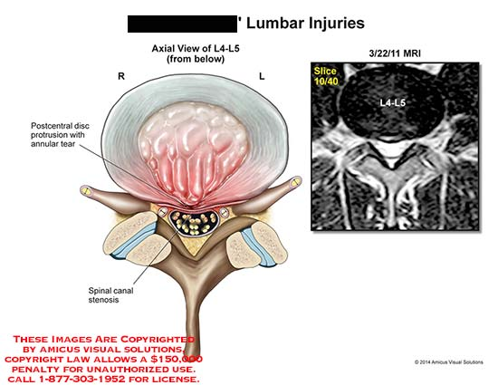 amicus,injury,lumbar,L4,L5,MRI,spinal,canal,stenosis,postcentral,disc,protrusion,annular,tear