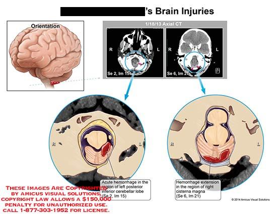amicus,injury,brain,CT,acute,hemorrhage,cerebellar,lobe,extension,cisterna,magna
