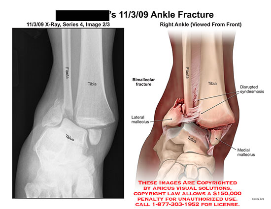 amicus,injury,fracture,ankle,X-Ray,fibula,tibia,talus,bimalleolar,lateral,malleolus,disrupted,syndesmosis,medial