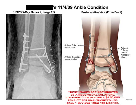 amicus,post-op,condition,ankle,Arthrex,fibular,plate,Tightrope,anchor,medial,malleolar,screw,tibia,fibular,x-ray