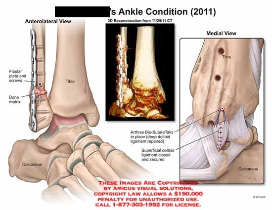 amicus,post-op,fibular,plate,screws,bone,matrix,tibia,calcaneus,CT,Antrhrex,Bio-SutureTaks,deep,deltoid,ligament
