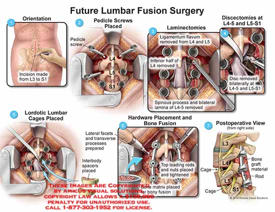 amicus,surgery,lumbar,incision,L3,L4,L5,S1,pedicle,screw,laminectomies,ligamentum,flavum,spinous,process,bilateral,lamina,L4-5,disc,L5-S1,lordotic,lumbar,cages,interbody,spacers,lateral,facets,hardware,bone,fusion,nuts,postoperative,rod