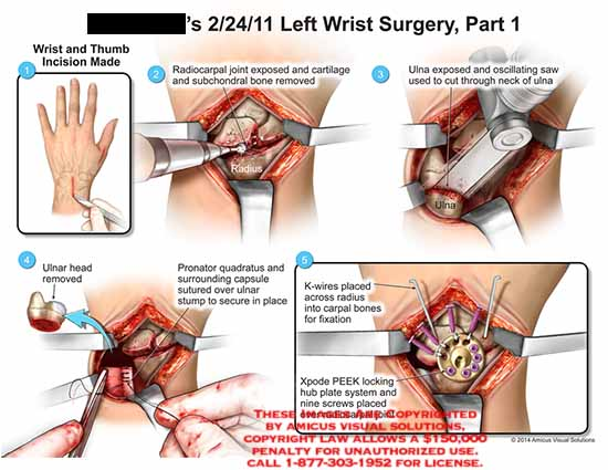 amicus,surgery,wrist,thumb,incision,radiocarpal,joint,cartilage,subchondral,bone,ulna,oscillating,saw,neck,head,pronator,quadratus,capsule,surrounding,K-wires,carpal,Xpode,PEEK,screws,locking,hub