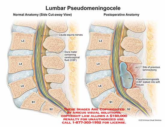 amicus,injury,normal,anatomy,cauda,equina,nerves,dura,mater,cerebrospinal,fluid,CSF,previous,laminectomy,postoperative,pseudomeningocele,soft,tissue