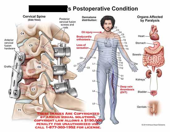 amicus,injury,cervical,spine,side,view,posterior,fusion,screws,rods,dermatome,distribution,anteror,fusion,grafts,c4,c5,c6,c7t1,bradycardia,orthostasis,sensation,heart,stomach,bowles,kidneys,bladder,genitals