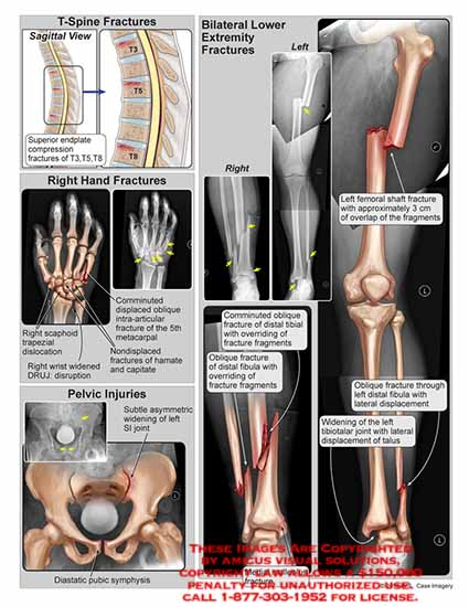amicus,injury,T-spine,sagittal,endplate,compression,fracturs,T3,T5,T8,bilateral,extrmity,scaphoid,trapezial,dislocation,comminuted,oblique,intra,articular,5th,metacarpal,nondisplaced,hamate,capitate,DRUJ,disruption,pelvic,injuries,asymmetric,widening,SI,joint,sacrolumbar,diastatic,pubic,symphysis, femoral,shaft,distal,tibial,fragments,fibula,tibiotalar,talus,medial,malleolus