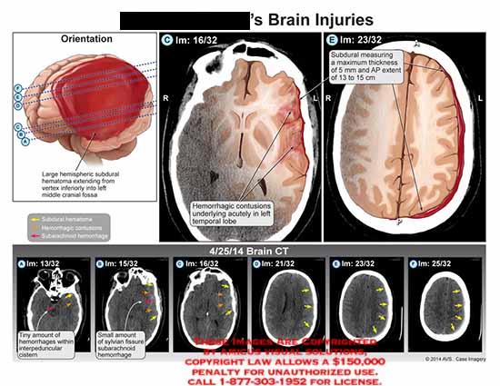 amicus,injury,subdural,measuring,thickness,AP,hemorrhagic,contusions,acutely,temporal,lobe,interpeduncular,cistern,sylvian,fissure,subarachnoid
