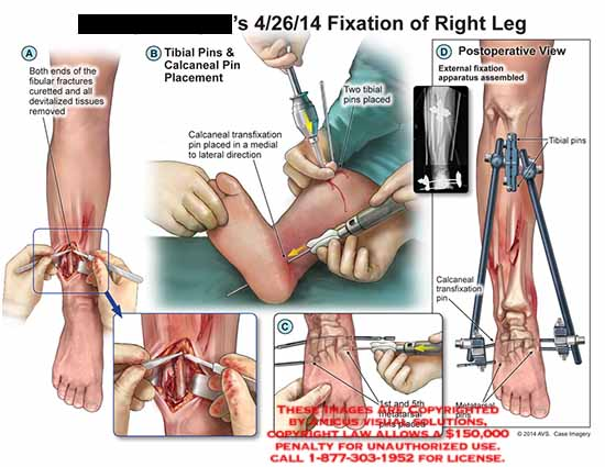 amicus,injury,fibular,fractures,curetted,devitalized,tissues,removed,tibial,pins,calcaneal,placement,transfixation,metatarsal,apparatus,fixation