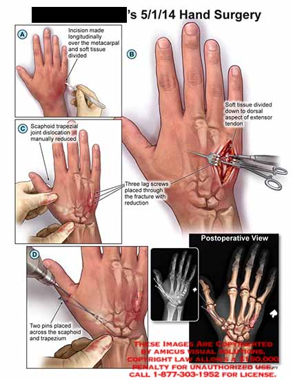 amicus,surgery,hand,incision,longitudinally,metacarpal,soft,tissue,divided,scaphoid,trapezial,joint,dislocation,manually,reduced,lag,screws,pins,trapezium,dorsal,extensor,tendon,postoperative