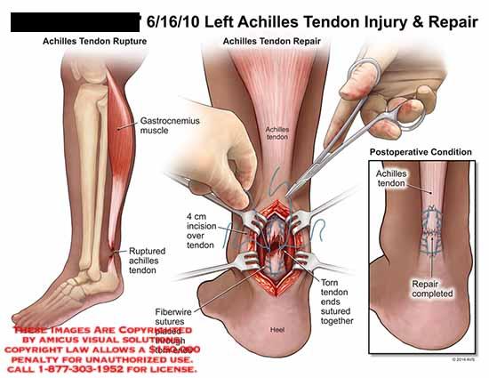 amicus,surgery,achilles,tendon,rupture,gastrocnemius,muscle,fiberwire,sutures,torn,ends,heel,incision,