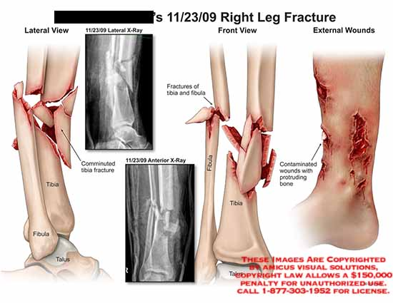 amicus,injury,lateral,front,view,external,wounds,x-ray,fractures,tibia,fibula,anterior,talus,comminuted,contaminated,protruding,bone