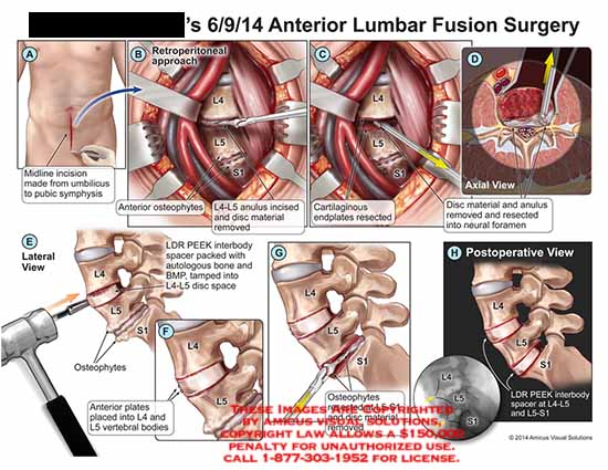 amicus,surgery,midline,incision,umbilicus,pubic,symphysis,retroperitoneal,anterior,osteophytes,l4,l5,anulus,incised,disc,cartilaginous,endplates,resected,LDR,PEEK,interbody,spacer,BMP,postoperative,view,neural,foramen
