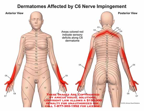 amicus,injury,dermatomes,C6,nerve,impingement,sensory,deficits,C7