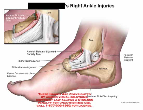 amicus,injury,ankle,tibia,talus,tibiotalar,ligament,torn,posterior,calcaneus,tendinopathy,tibionavicular,tibiocalcanean,plantar,calcaneonavicular