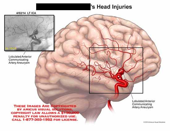 amicus,injury,head,brain,ICA,lobulated,communicating,artery,aneurysm