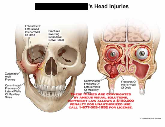 amicus,injury,head,fracture,bone,orbit,infraorbital,nerve,canal,zygomatic,arch,comminuted,maxillary,sinus