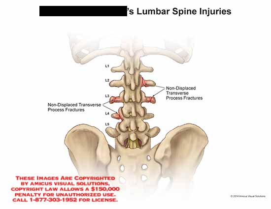 amicus,injury,lumbar,spine,non-displaced,transverse,process,fracture,L1,L2,L3,L4,L5