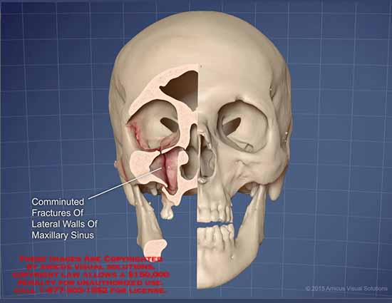 amicus,skull,comminuted,fractures,lateral,walls,maxillary,sinus
