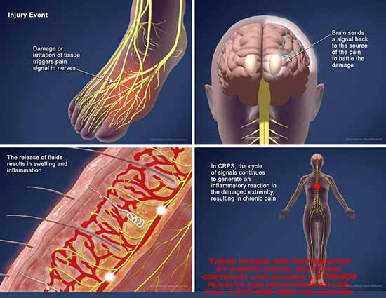 amicus,injury,damage,pain,nerve,brain,swelling,inflammation,CRPS,chronic