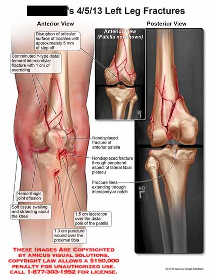 AMICUS Illustration of amicus,injury,fracture,leg,disruption
