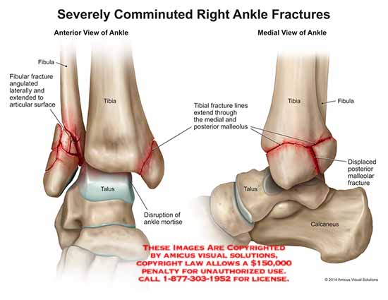 amicus,injury,ankle,severely,comminuted,fracture,fibula,tibia,angulated,articular,surface,talus,disruption,mortise,medial,posterior,malleolus