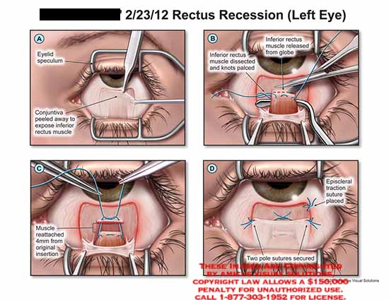 amicus,surgery,eye,rectus,recession,eyelid,speculum,conjunctive,inferior,rectus,muscle,dissected,knots,palced,globe,4mm,reattached,episcleral,traction,suture,pole