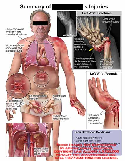 amicus,injury,summary,injuries,lematoma,shoulder,pleural,hematoma,atelectatic,lung,L1,compression,vertebral,body,height,loss,L2,fracture,acetabulum,fracture,ramus,inferior,hemorrhagic,adrenal,gland,wrist,volar,ulnar,styloid,process,radius,completge,displacement,overriding,transverse,comminuted,lacerations,gross,contaimination,acute,respiratory,failure,hemothorax,anemia,pulmonary,embolus,IVC,filter,insertion