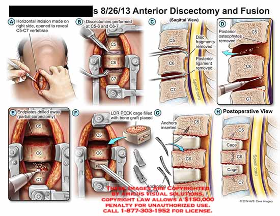 amicus,surgery,anterior,discectomy,fusion,c5,c6,c7,vertebrae,fragments,ligament,posterior,osteophytes,endplates,drilled,corpectomy,LDR,PEEK,graft,anchors,cage,spinal,cord
