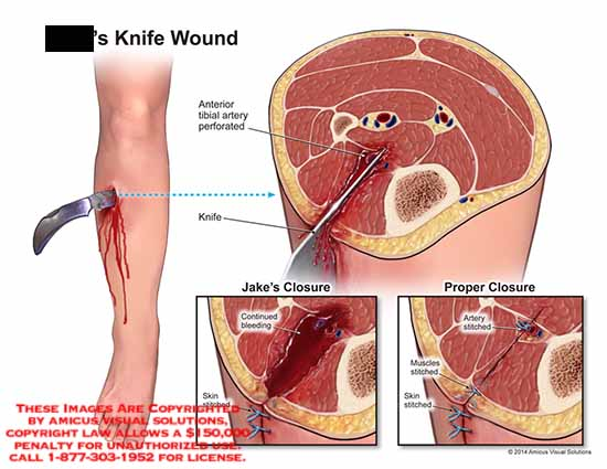 amicus,injury,knife,wound,anterior,tibial,artery,perforated,closure,bleeding,continued,skin,stitched,muscles,artery