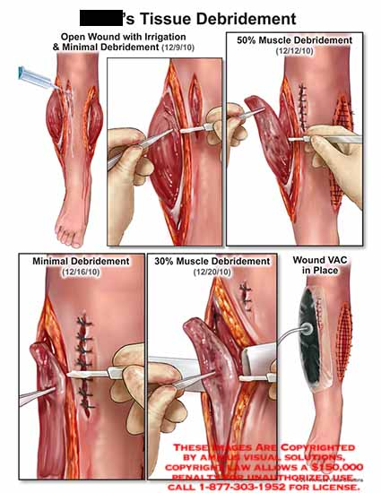 amicus,surgery,debridement,tissue,open,woung,irrigation,minimal,debridement,muscle,wound,VAC