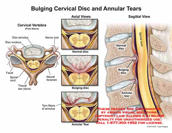 amicus,injury,cervical,disc,annular,tear,bulge,herniation,vertebra,spine,pain,nucleus,facet,spinal,cord,thecal,dura,neural,foramen,bulging,herniated,fibers,radiculopathy,protrusion,extrusion,damaged,protruding