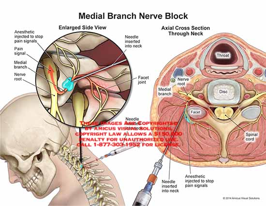 amicus,anasthetic,injected,pain,signals,nerve,root,needle,nserted,neck,facet,joint,pain,anasthetic,disc,throat,spinal,cord