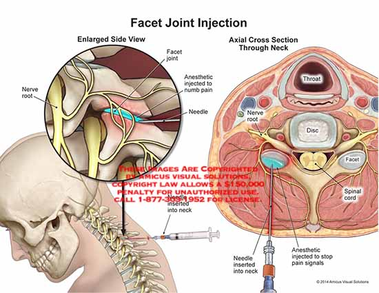 amicus,injection,facet,joint,anesthetic,numb,needle,neck,nerve,root,disc,throat,spinal,cord